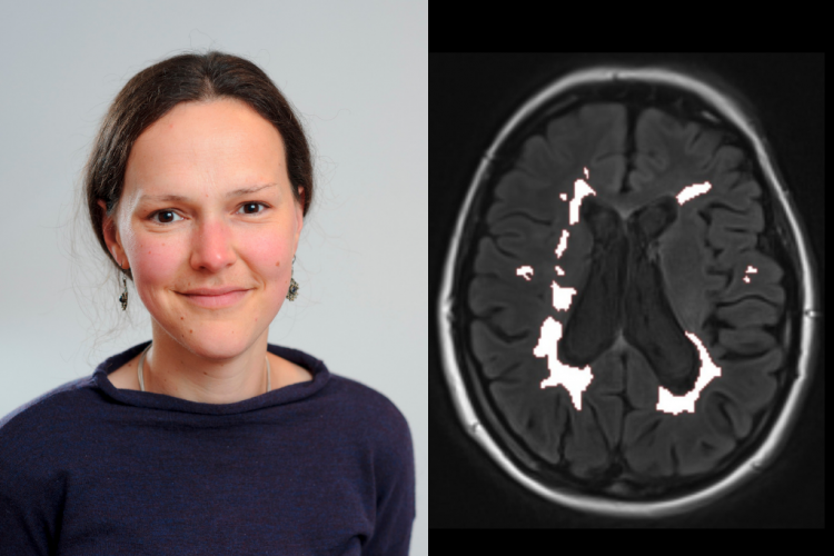 Dr Daisy Mollison and an image of a brain scan