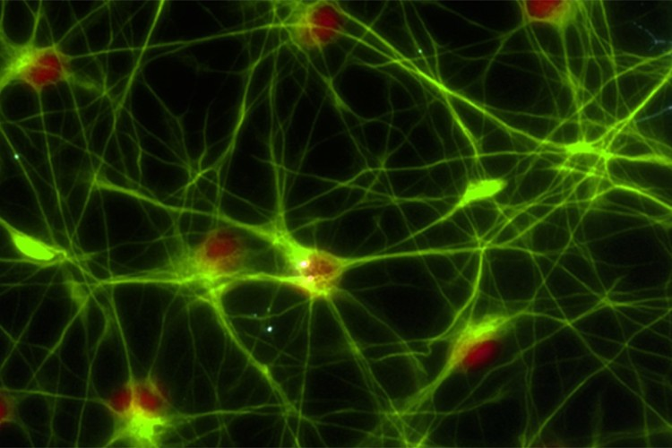Glial cells grown in the laboratory